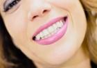 Щадящо професионално избелване на зъби, цялостен преглед и план на лечение от I-DENT, Д-р Христо Цветков, снимка 2