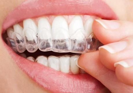 Омръзна ли ви да скърцате със зъби? Вземете шина за бруксизъм само за 90 лв.