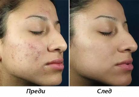 Повърхностен химичен пилинг за чиста и сияйна кожа от SunClinic, София