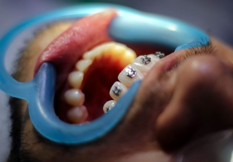 Ортодонтски преглед и изготвяне на план за лечение с брекети от Дентален кабинет д-р Снежина Цекова